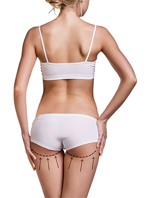 42597764 - woman's buttocks prepared to plastic surgery isolated